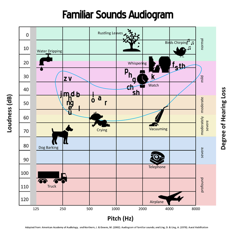 Audiology Waukesha WI Audiogram